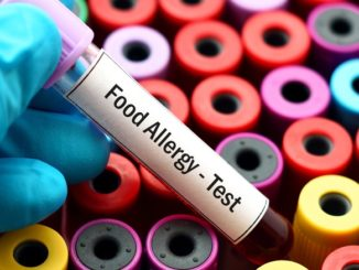 How Confusing Are Allergen Food Labels for Consumers?